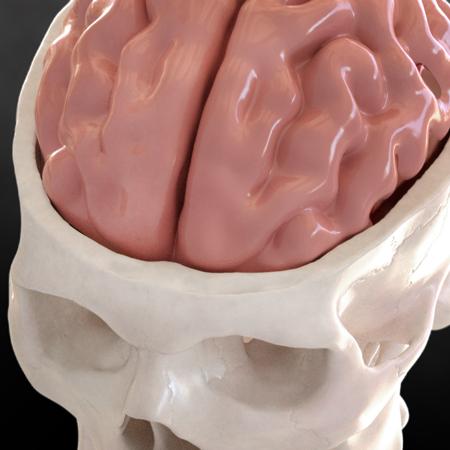 3D Printed Reconstruction Skull Patient Films DICOM