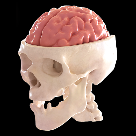 3D Model Reconstruction of Patient's Skull and Brain