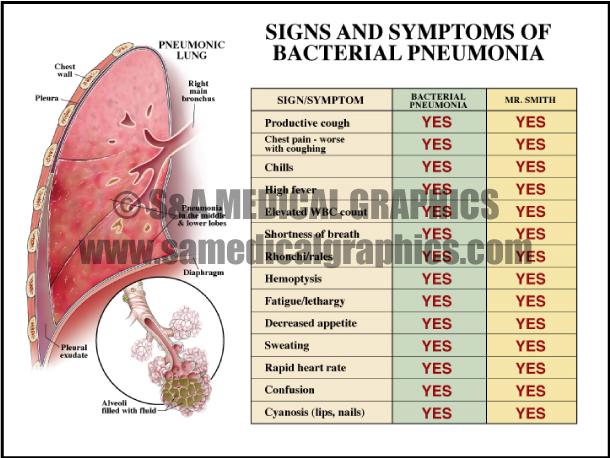 Medical Illustration Bacterial Pneumonia Diagram Chart