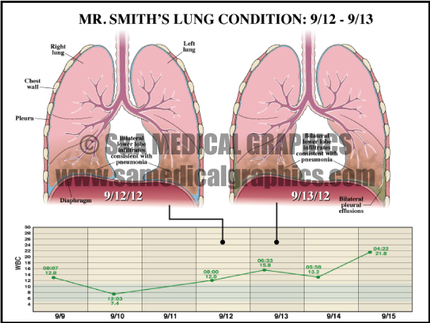 Medical Illustration Lung Condition Diagram Chart