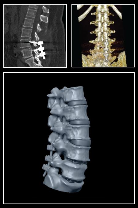 3D model of spine from DICOM films reconstruction
