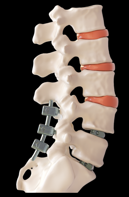 3D Printed Model of Patient Spine With Screws