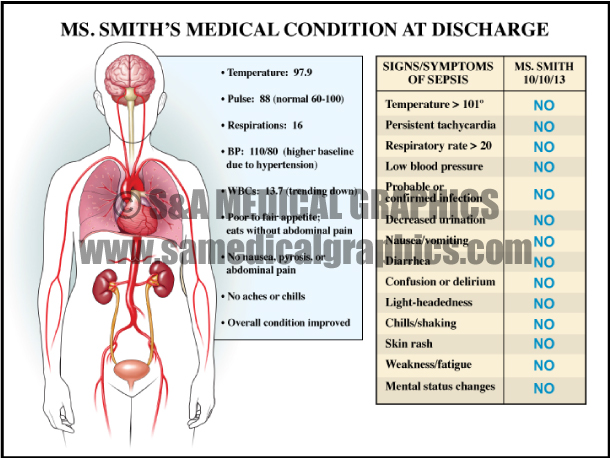 Medical Illustration Medical Condition Diagram