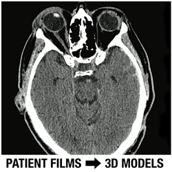 DICOM Patient Films Converted To 3D Models