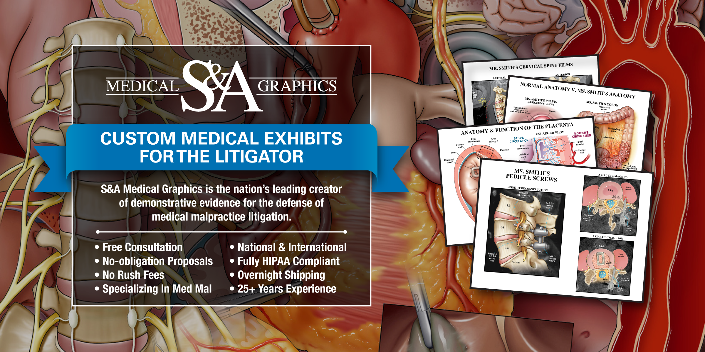 Medical Legal Illustration Trial Exhibits Company