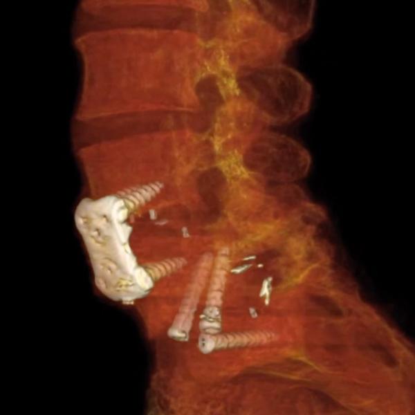 Spine Radiology Reconstruction Screenshot