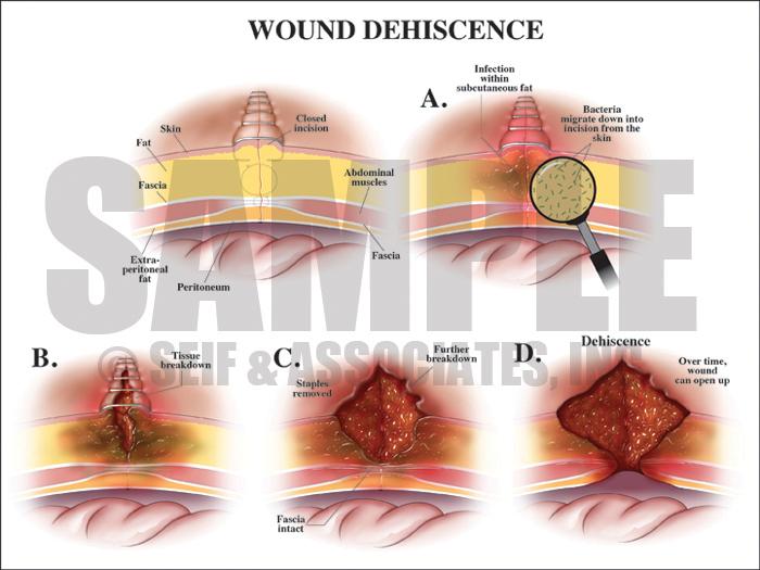 Wound Dehiscence Medical Illustration