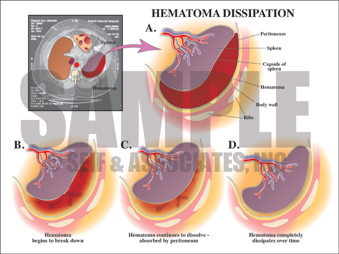 Hematoma Dissipation Medical Illustration