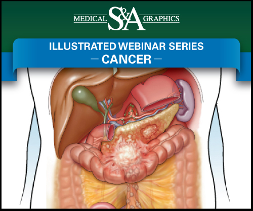 Cancer webinar medical litigation