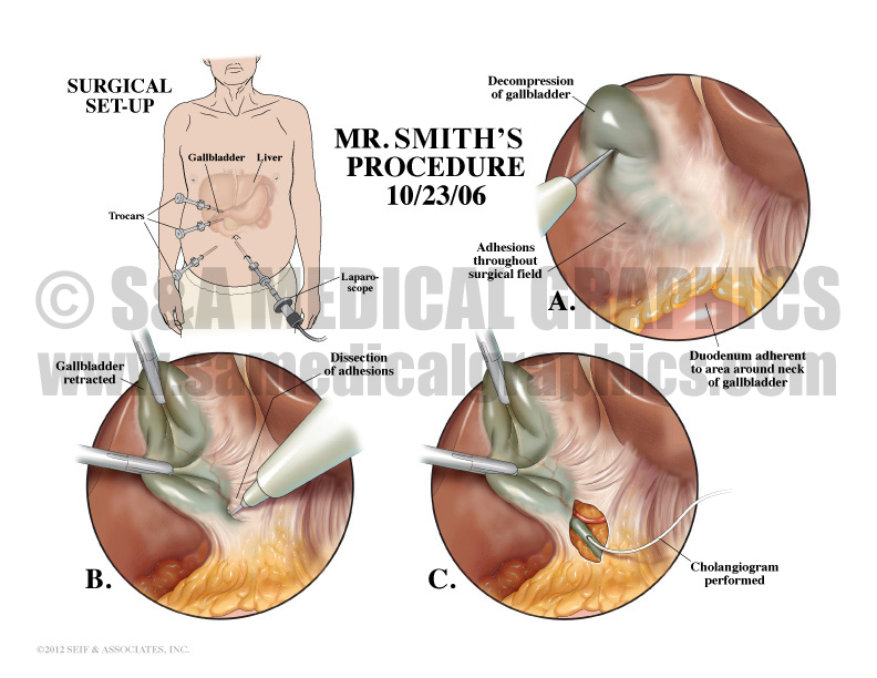 Cholecystectomy Procedure Medical Illustration