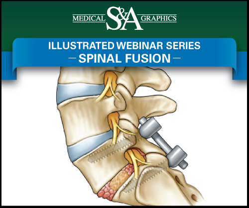 Spinal Fusion webinar medical litigation