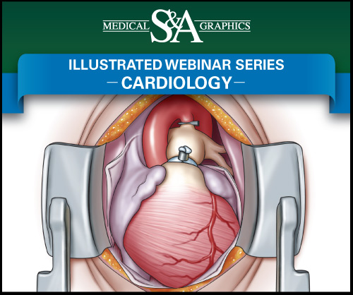 Cardiology webinar medical litigation