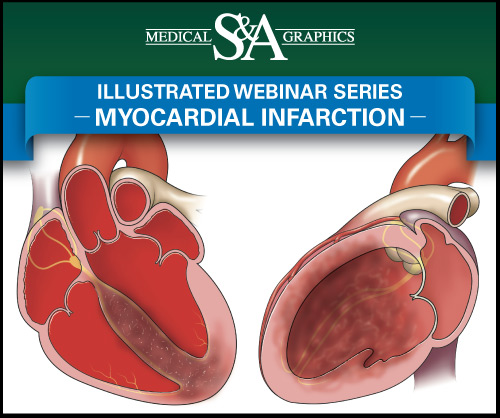 Myocardial Infarction webinar medical litigation