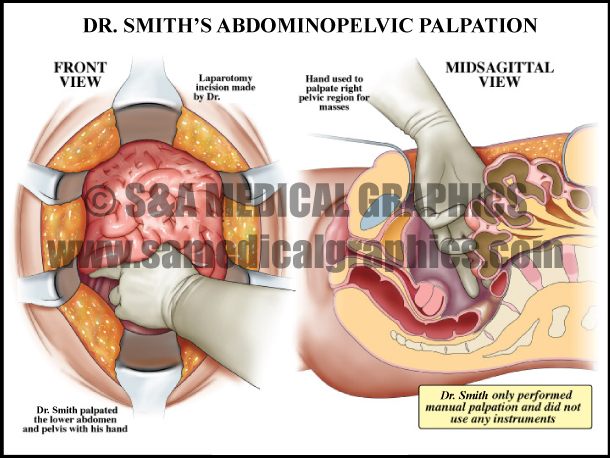 Abdominopelvic Palpation Surgery