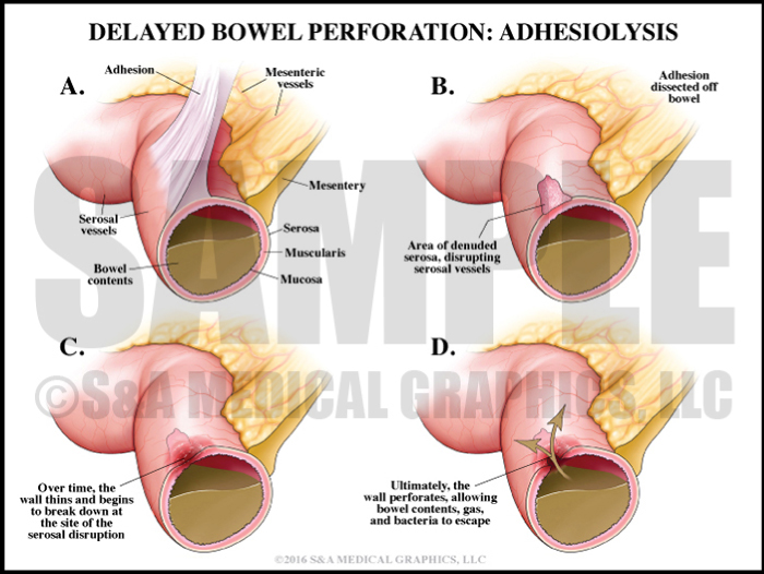 Delayed Bowel Perforation Adhesions Medical Illustration