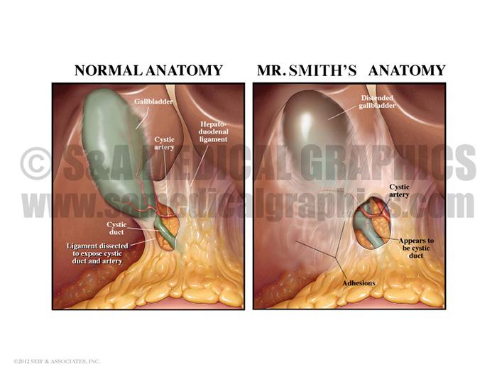 Gallbladder Bile Duct Medical Illustration