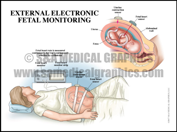 External Electronic Fetal Monitoring