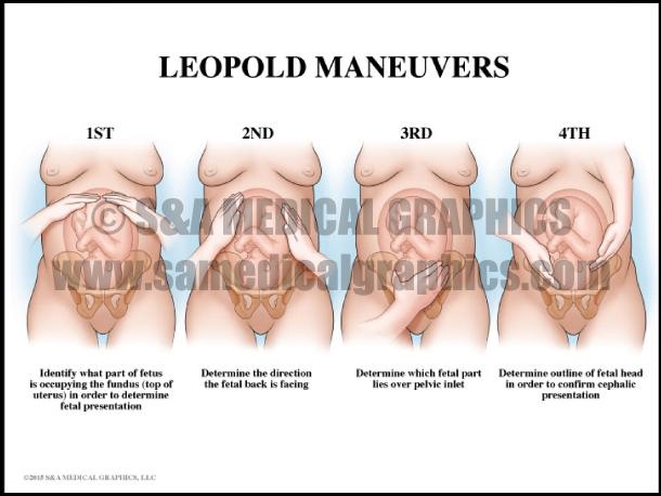 Leopold Maneuvers