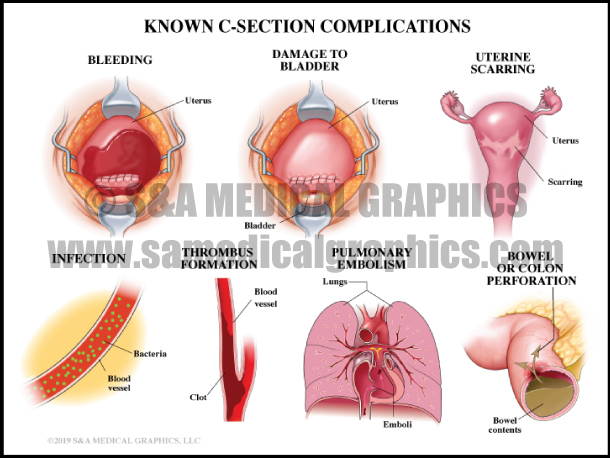Known C-Section Complications