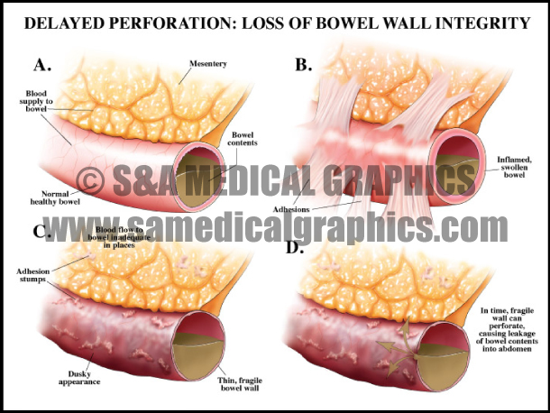 Abdominopelvic surgery bowel perforation