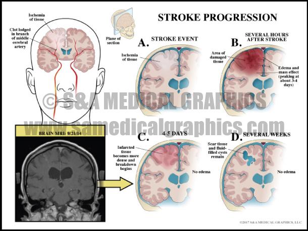 Stroke Progression