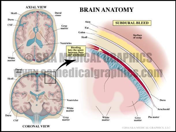 Brain Anatomy & Subdural Bleed