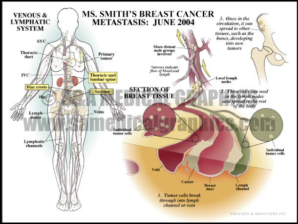 Breast Cancer Metastasis Medical Illustration