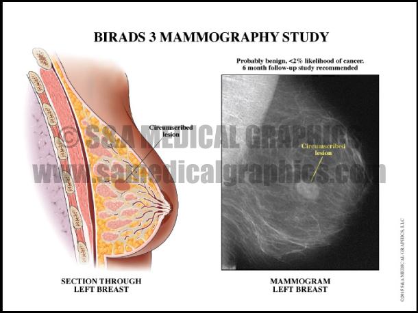 BIRADS 3 Mammography Study