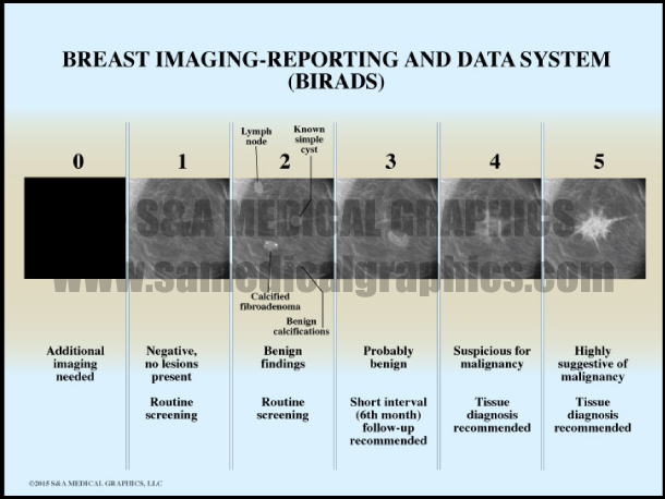 Breast Imaging Reporting and Data System
