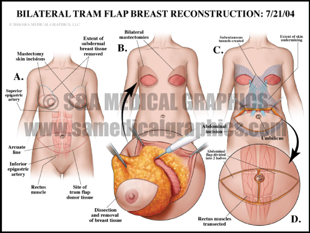 Bilateral TRAM Flap Breast Reconstruction