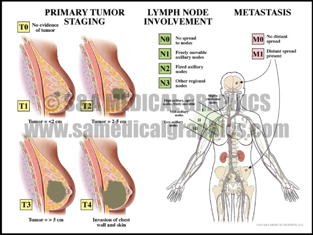Primary Tumor Staging