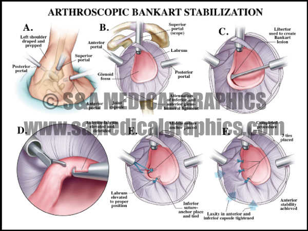 Arthroscopic Bankart Stabilization Medical Illustration