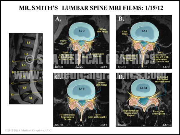 Lumbar Spine Medical Illustration