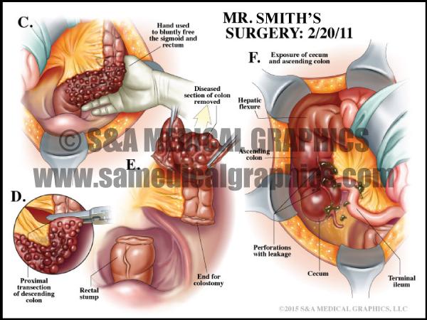 Abdominal Surgery Bowel Medical Illustration