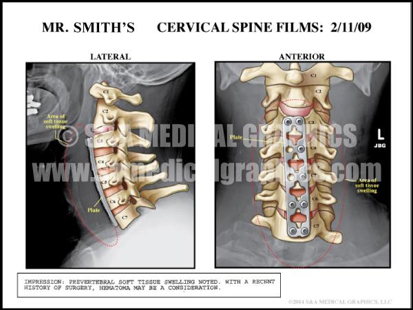 Cervical Spine Medical Illustration