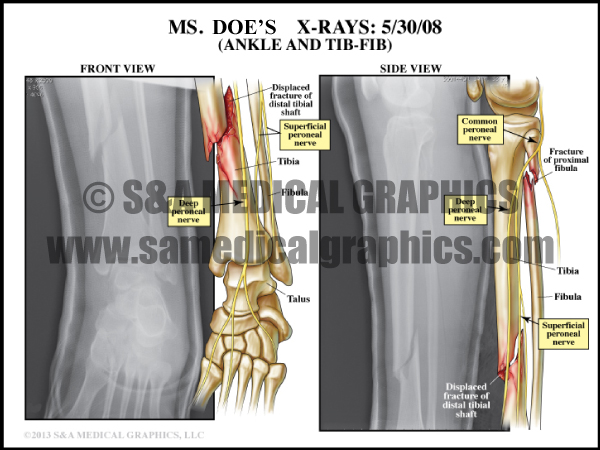 Tibia Fibula Fracture Medical Illustration