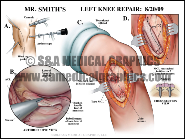 Knee Repair Surgery Medical Illustration