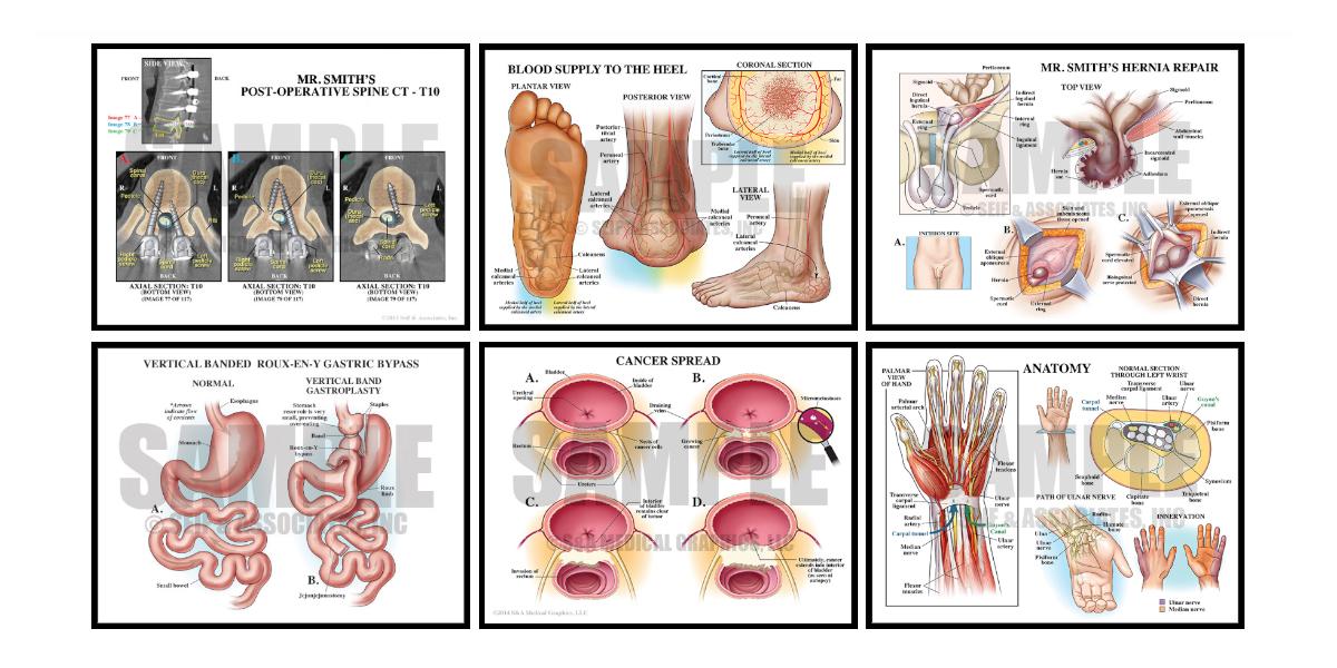Case Study Blog Medical Illustration