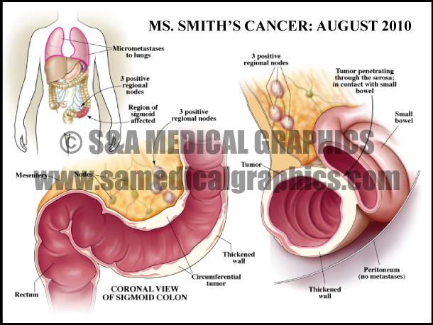 Abdominopelvic surgery colon cancer