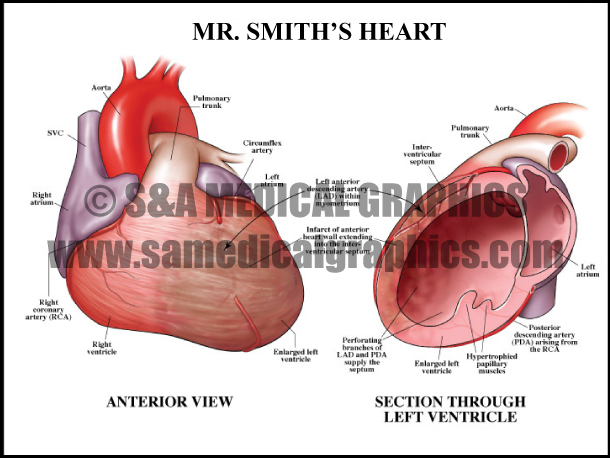Myocardial Infarction Heart Sample