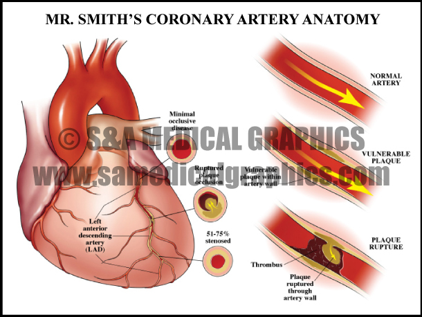 Coronary Artery Anatomy Sample
