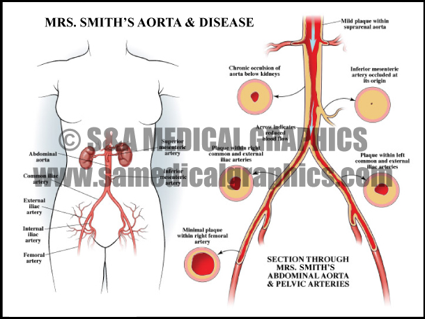 Aorta Artery Disease Sample