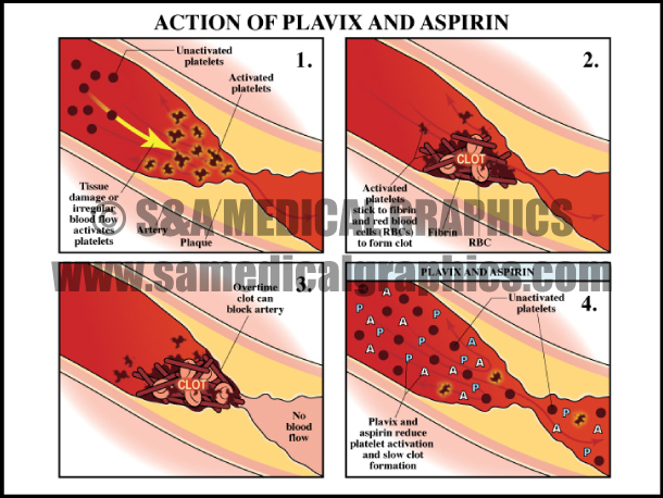 Plavix And Aspirin Affect Heart Artery