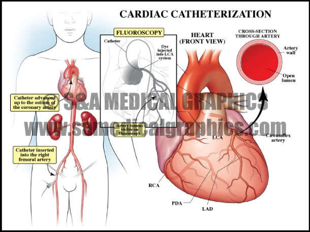 Cardiac Catheterization Sample