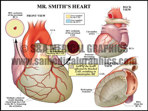 Myocardial Infarction Sample