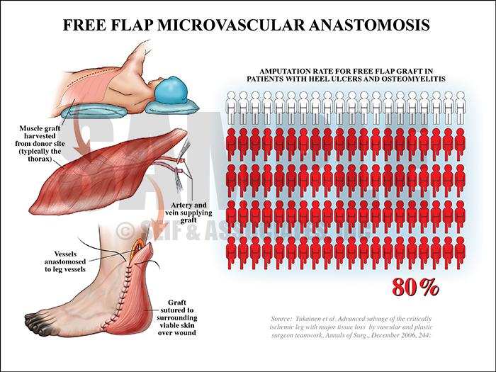 Free Flap Microvascular Anastomosis Medical Illustration