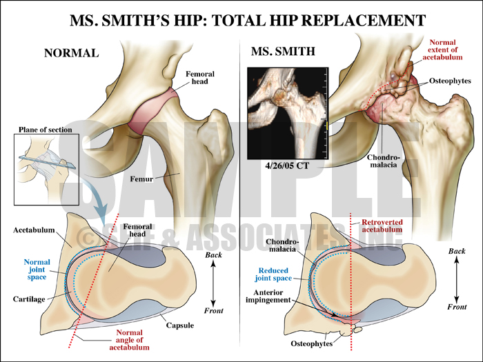 Total Hip Replacement Surgery Procedure