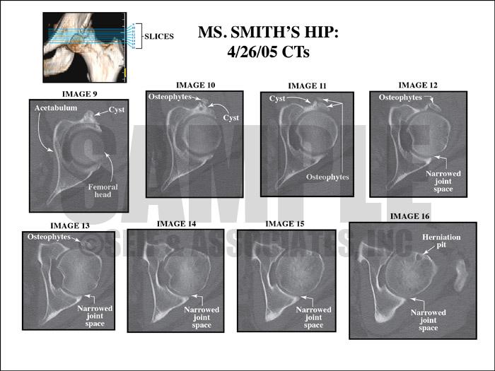 Hip CT Film
