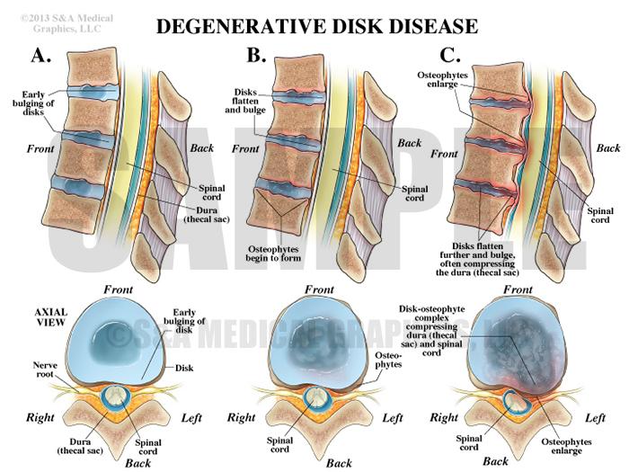 Degenerative Disk Disease Medical Illustration