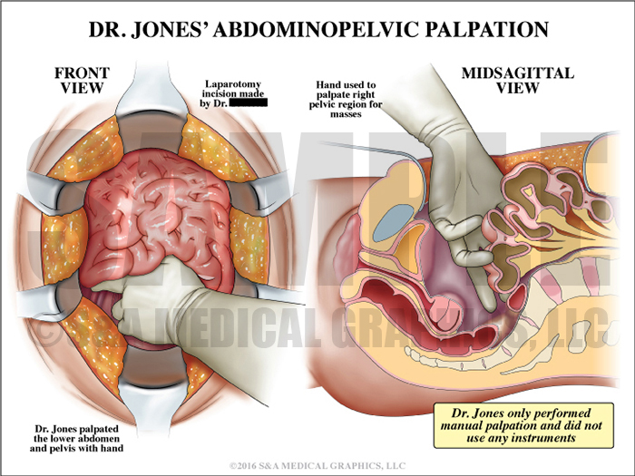 Abdominopelvic Palpation Medical Illustration